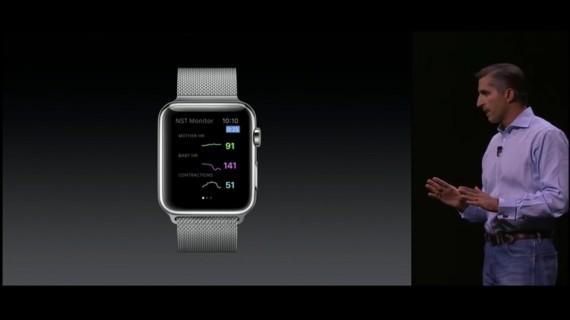 Apple Watch update 2015